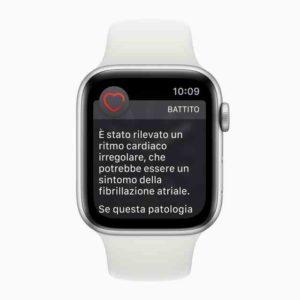 Apple Watch 4 ECG